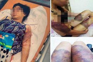 Bố cô gái bị giam giữ, tra tấn suốt 21 ngày: 'Tôi đau như chết đi sống lại'