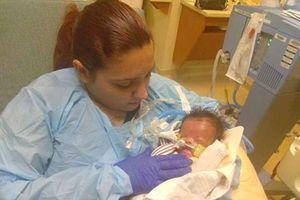 Em bé ở Mỹ sinh ra không có da