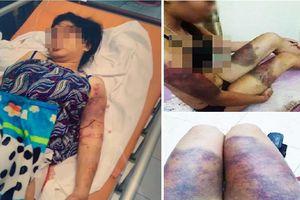Vụ cô gái 18 tuổi mang thai 6 tháng bị đánh đập, tra tấn đến sảy thai: Nhóm đối tượng có thể đối mặt 12 năm tù?