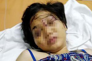 Nhóm tra tấn cô gái 18 tuổi đến sẩy thai hành động mất nhân tính