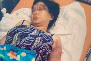 Khởi tố kẻ nhốt, tra tấn thiếu nữ 18 tuổi đến sẩy thai