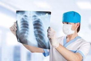 Tiến bộ mới trong điều trị ung thư phổi không tế bào nhỏ