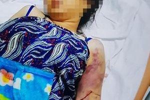 Khởi tố kẻ đánh cô gái 18 tuổi sẩy thai