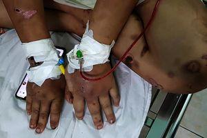 Thai phụ 18 tuổi bị hành hạ dã man: Lấy lời khai người đem thai nhi đi bỏ