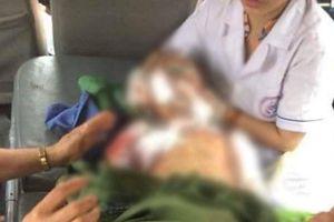 Bệnh viện thông tin vụ bé trai bị chó nhà cắn tử vong ở Thái Nguyên