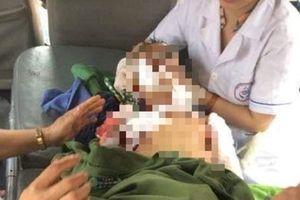 Thêm trường hợp bé trai 7 tuổi bị chó nuôi cắn tử vong ở Thái Nguyên
