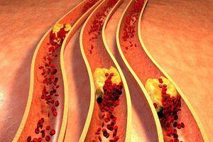 Những biện pháp tự nhiên để giảm mức cholesterol