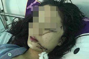 Công an thông tin vụ thiếu nữ bị rạch mặt ở Bắc Ninh