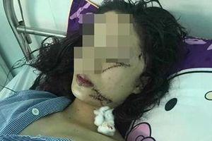 Vụ cô gái 18 tuổi bị bạn rạch mặt, khâu 60 mũi: Nguyên nhân khó tin