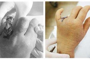Chiếc nhẫn vướng vào cửa ô tô, người phụ nữ cụt mất một ngón tay