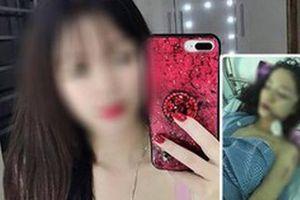Cô gái xinh đẹp bị rạch mặt ở Bắc Ninh do mâu thuẫn chuyển phòng