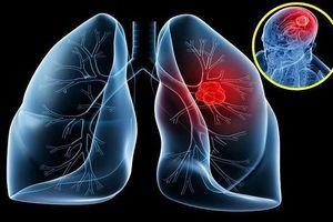Mệt mỏi đi xem bói, 'thầy' phán bị ung thư phổi phải cúng 100 triệu để đuổi vong