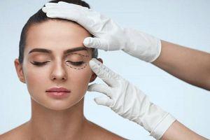Muốn phẫu thuật mí mắt đẹp cần chuẩn bị kỹ những việc này