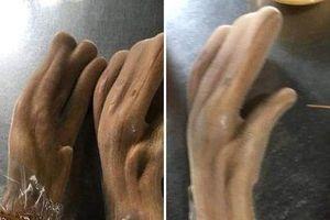 Hi hữu: Cặp nhung hươu nặng kỷ lục giống bàn tay người ở Hà Tĩnh