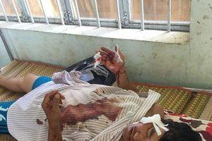Xã đội trưởng bị 'cát tặc' chém trọng thương: Công an Bình Thuận vào cuộc điều tra
