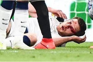 Rợn người hình ảnh sao Tottenham nằm sân với khuôn mặt đầm đìa máu