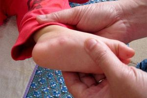 Làm gì để hạn chế nguy cơ dị ứng, phản vệ với thức ăn ở trẻ nhỏ?