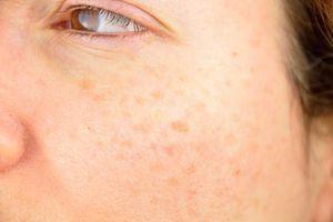 Những dấu hiệu cảnh báo da mặt đang lão hóa nhanh hơn bình thường