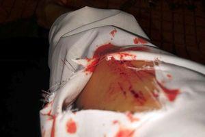TP.HCM: Cô gái phải điều trị phơi nhiễm HIV sau khi bị 2 kẻ 'biến thái' tấn công bằng vật nhọn trong lúc dừng đèn đỏ