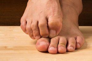 Phải làm gì khi bị nấm móng chân?