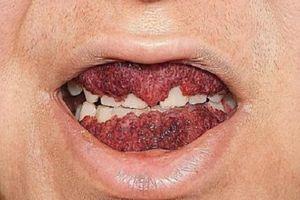 Căn bệnh kỳ lạ khiến nướu người phụ nữ này như quả dâu tây dát lên