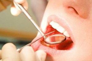 Bài thuốc làm bong cao răng bằng vỏ chanh và giấm