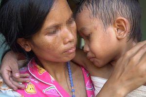 Ba mẹ không cho đi chữa trị, cháu bé có nguy cơ bị nhiễm trùng máu