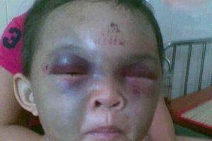 Sự thực thông tin bé trai ở Thanh Hóa bị dì ghẻ đánh đập thâm tím mặt vì nhớ mẹ đẻ