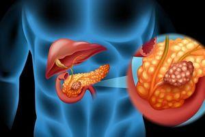 Cách dễ dàng nhất để ngăn ngừa ung thư tuyến tụy
