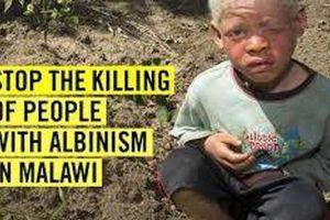 Malawi: Án tử hình cho hung thủ giết người bạch tạng