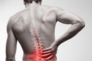 4 cơn đau lưng là dấu hiệu của viêm cột sống dính khớp