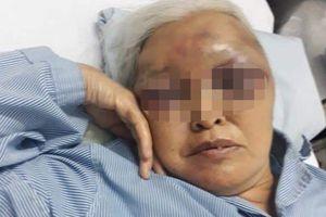 Đòi thăm con lúc rạng sáng, chàng rể hành hung mẹ vợ cũ bầm tím mặt