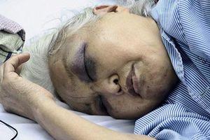 Hà Nội: Con rể đánh mẹ vợ nhập viện vì đòi thăm con lúc rạng sáng