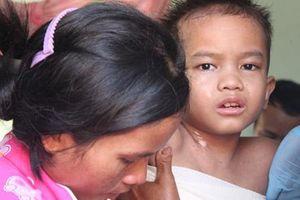 Bé trai bị bỏng xăng nặng nhưng gia đình kiên quyết từ chối chữa trị