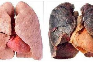 Cận cảnh ca cắt phổi đen sì do hút thuốc lá