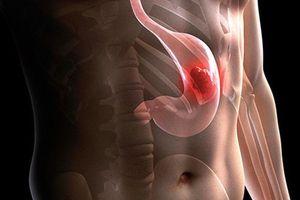10 dấu hiệu rõ ràng của bệnh ung thư dạ dày