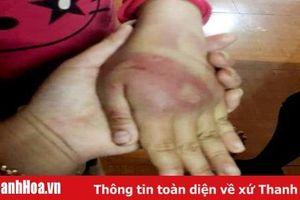 Ông bố bạo hành con gái 8 tuổi bị xử phạt