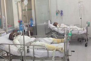 Rơi tỏm vào bồn nước mắm, người đàn ông nhập viện cấp cứu vì bỏng nặng