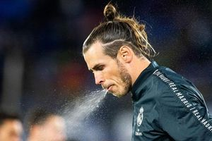 Bale được khuyên nên điều trị tâm lý