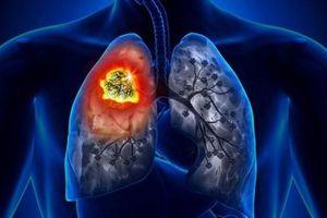 Hệ thống trí tuệ nhân tạo giúp phát hiện sớm ung thư phổi