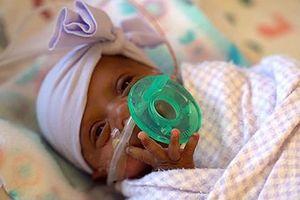 Em bé nhỏ nhất thế giới xuất viện