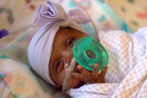 Bé gái sơ sinh nhỏ nhất thế giới được xuất viện