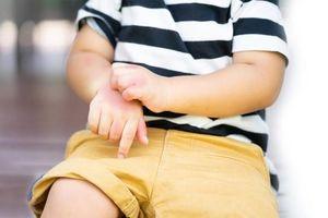 8 kỹ năng sơ cứu cứu mạng trẻ trong những trường hợp khẩn cấp