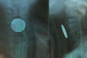 Phát hiện đồng xu có đường kính 24 mm nằm trong thực quản bé trai 5 tuổi