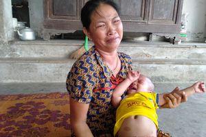 Tiếng khóc xé lòng của bé gái 3 tuổi mắc bệnh hiểm nghèo
