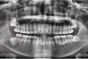 Tưởng mọc răng khôn hóa khối u trong miệng