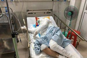 Bị bén lửa toàn thân sau tai nạn, cụ ông thương binh vẫn cố cứu con gái 6 tuổi