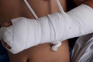 Bình Dương: Một bảo vệ bị chém lìa tay