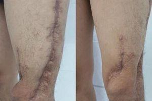 Kỳ tích 7 lần đại phẫu cứu chân của sinh viên khỏi bị cắt cụt