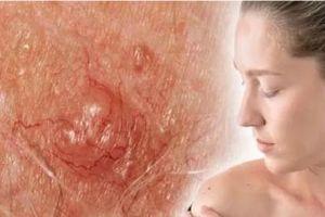 Dấu hiệu gần giống nốt ruồi cảnh báo bệnh ung thư da